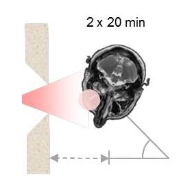 Haz de neutrones irradiando zona con boro - NEUTRONES PARA MEDICINA