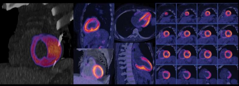 Escáner de medicina nuclear - NEUTRONES DE MEDICINA