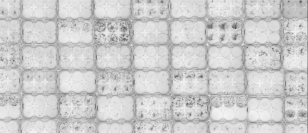 Placas Clonogenicidad - Investigación - NEUTRONES PARA MEDICINA